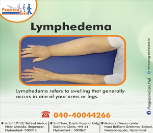 Lymphedema (Featured Image)